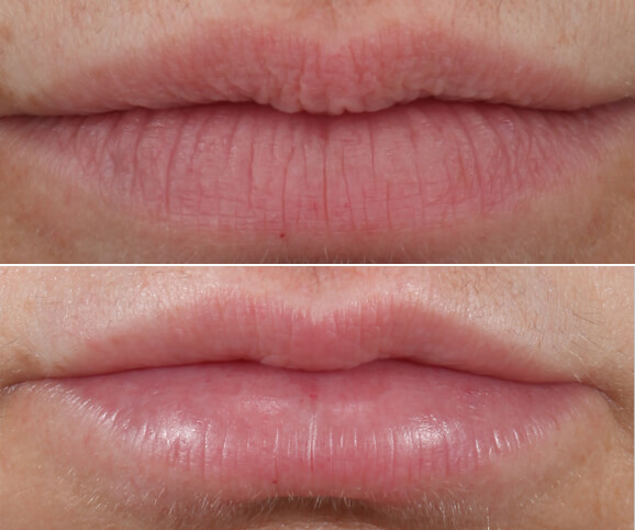 Lip texture before and after Restylane® Kysse results: Anne - No Overlay
