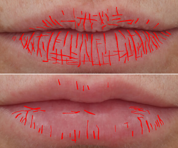 Lip texture before and after Restylane® Kysse results: Anne - Texture Density Map
