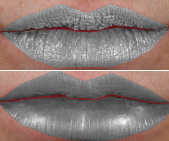 Lip texture before and after Restylane® Kysse results: Anne - Texture Depth Map