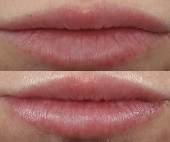 Lip texture before and after Restylane® Kysse results: Kate - No Overlay
