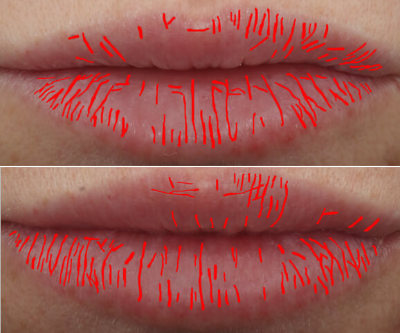 Lip texture before and after Restylane® Kysse results: Kate - Texture Density Map