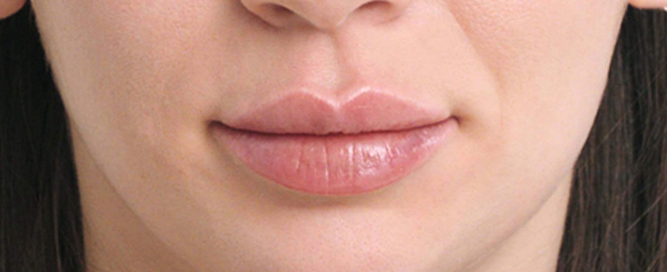 Lip enhancement with Restylane® Kysse