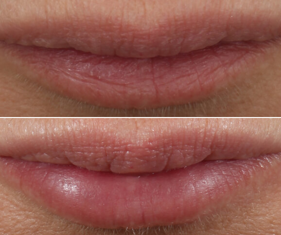 Lip texture before and after Restylane® Kysse results: Sara - No Overlay