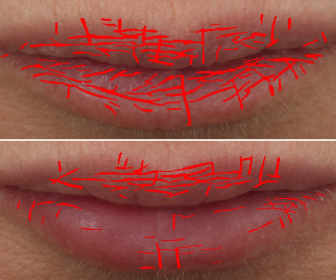 Lip texture before and after Restylane® Kysse results: Sara - Texture Density Map