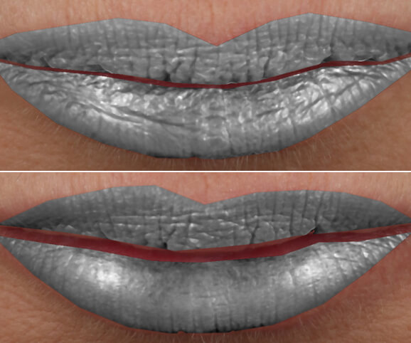 Lip texture before and after Restylane® Kysse results: Sara - Texture Depth Map