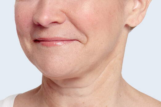 Restylane Lyft for cheeks before and after ‐ Bridget after treatment profile view