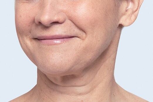 Restylane Lyft for cheeks before and after ‐ Bridget before treatment profile view