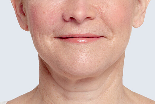 Actual patient treated with Restylane Lyft in each cheek before and after ‐ Bridget after treatment full view
