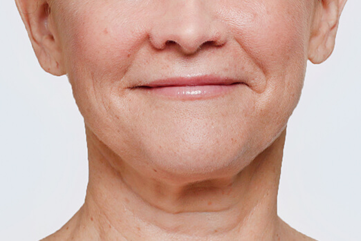 Actual patient treated with Restylane Lyft in each cheek before and after ‐ Bridget before treatment full view