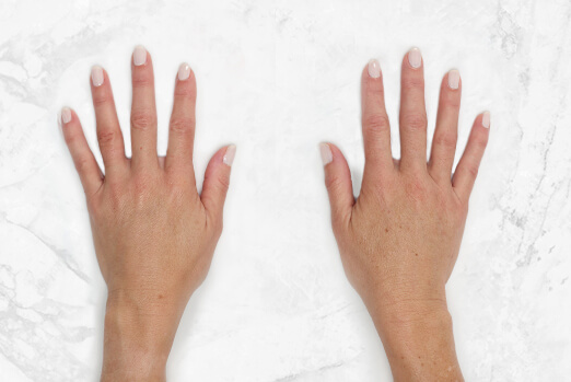 Before and after of Restylane Lyft for hands ‐ Bridget's after treatment clinical view