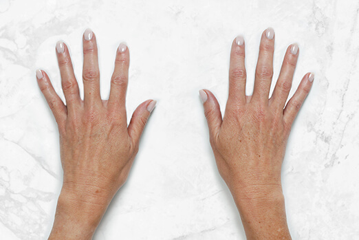 Before and after of Restylane Lyft for hands ‐ Bridget's before treatment clinical view