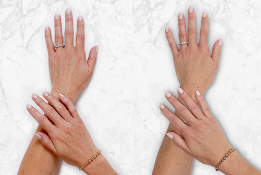 Before and after Restylane Lyft hand treatment ‐ Bridget's view