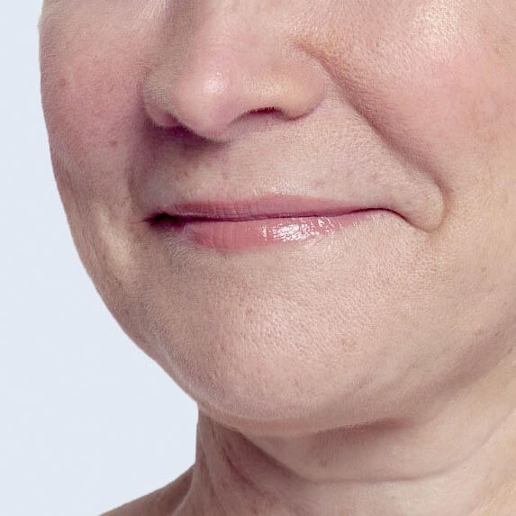 Restylane Lyft cheek filler before and after ‐ Bridget's profile view