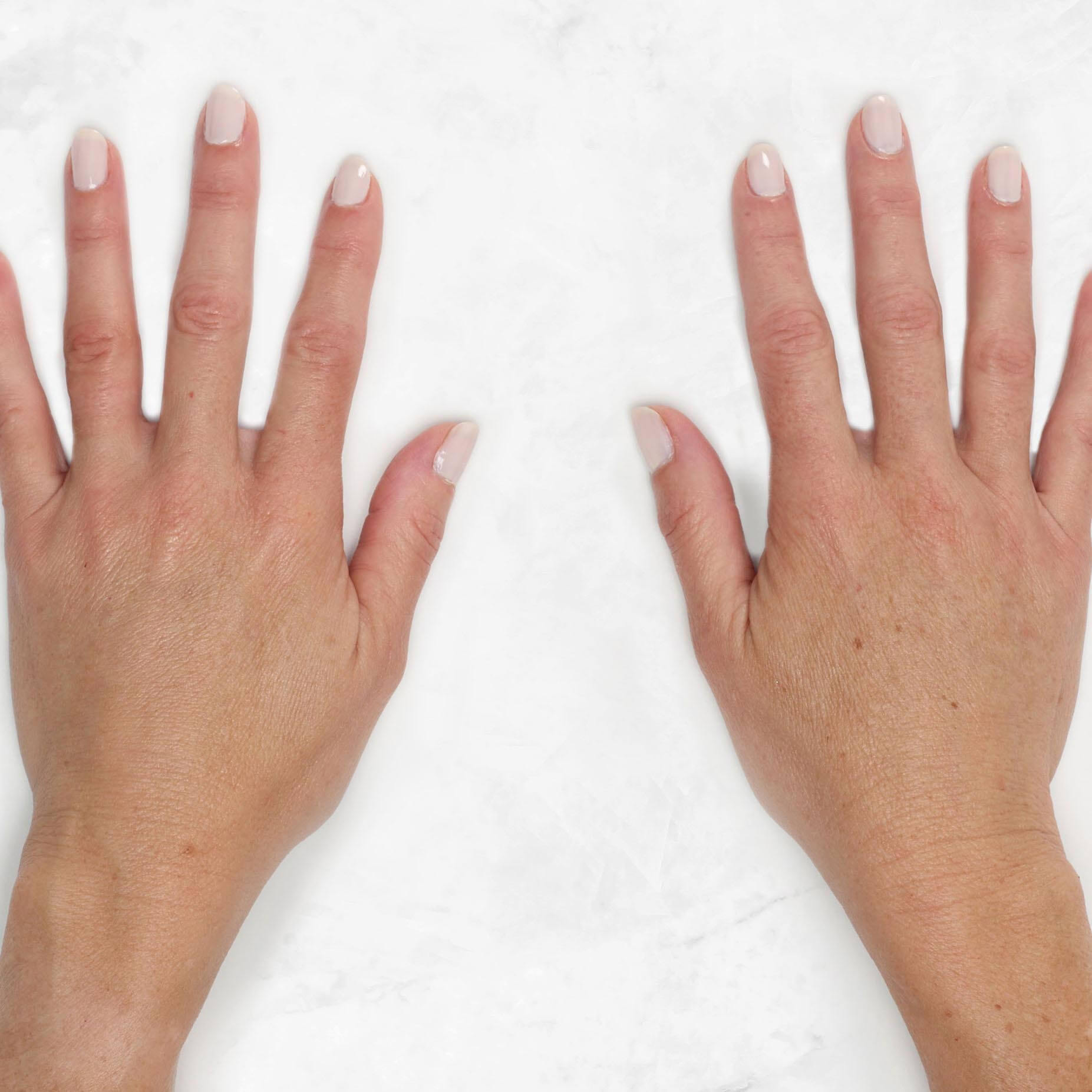 See Bridget's hands before and after Restylane Lyft