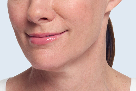 After Restylane Lyft treatment in each cheek and nasolabial fold ‐ Claire's profile view