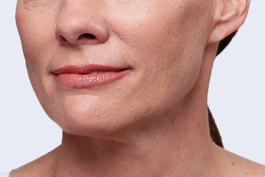 Before Restylane Lyft treatment in each cheek and nasolabial fold ‐ Claire's profile view
