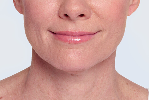After Restylane Lyft treatment in each cheek and nasolabial fold ‐ Claire's full view