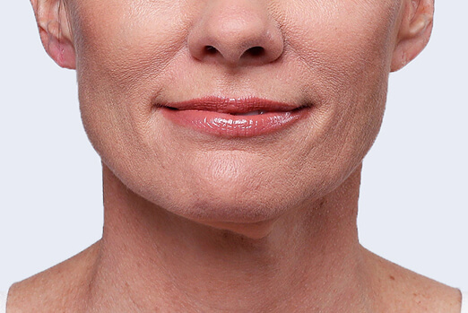Before Restylane Lyft treatment in each cheek and nasolabial fold ‐ Claire's full view