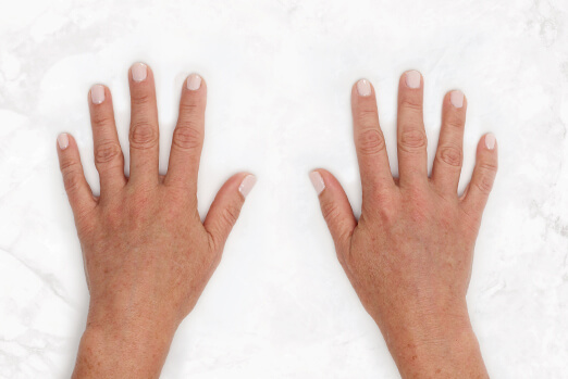 Claire's hands after Restylane Lyft hand treatment ‐ clinical view