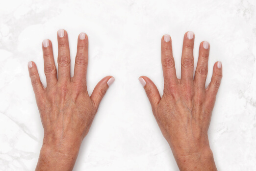 Before Restylane Lyft hand treatment ‐ Claire's clinical view