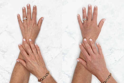 Before and after Restylane Lyft hand treatment ‐ Claire's clinical view