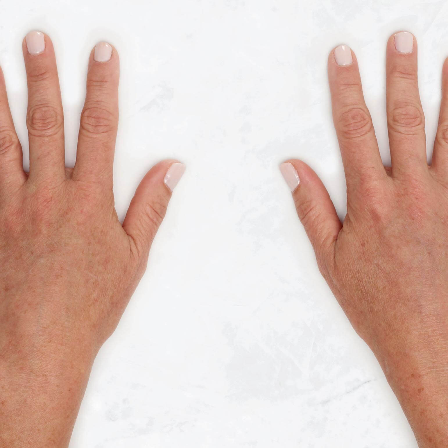 See Claire's clinical view before and after Restylane Lyft hand treatment