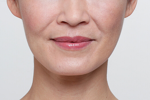 Restylane Lyft for cheeks before and after ‐ Gina before treatment full view
