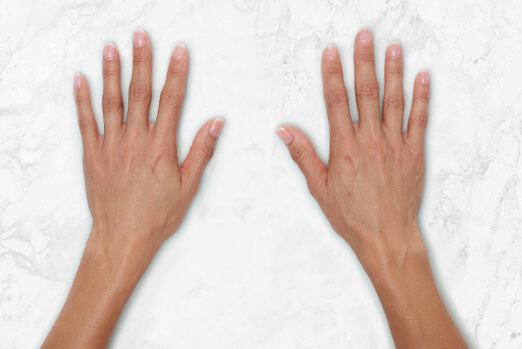 Restylane Lyft for hands before and after ‐ Gina after treatment clinical view