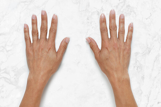 Restylane Lyft for hands before and after ‐ Gina before treatment clinical view