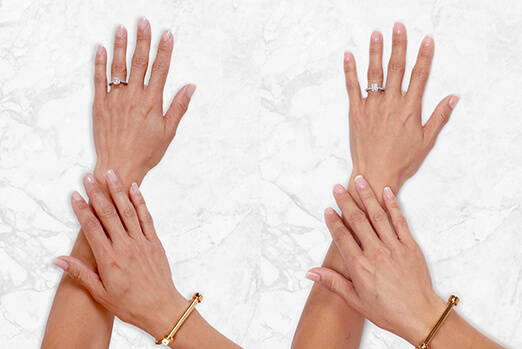 Gina's hands before and after Restylane Lyft hand treatment