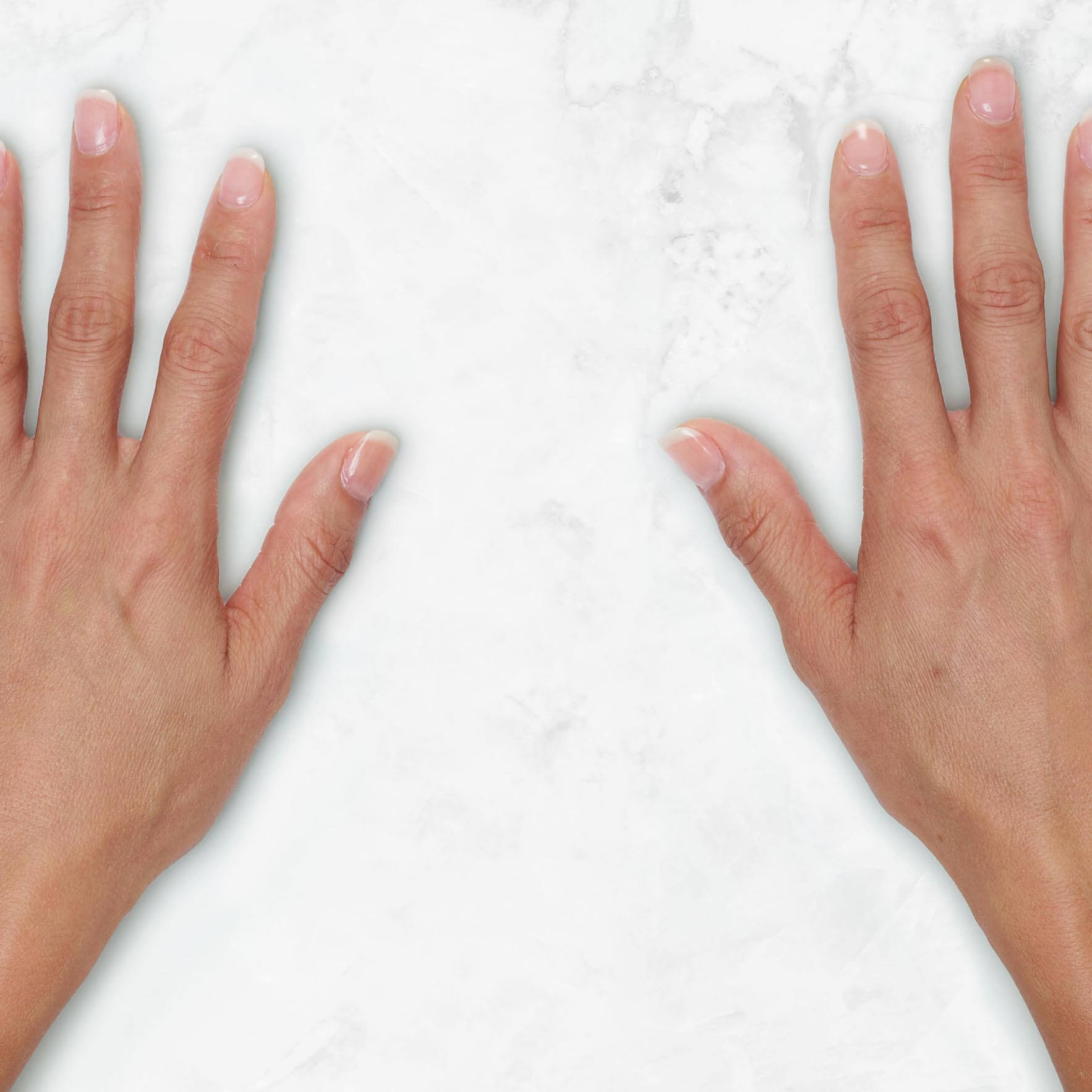 Restylane Lyft for hands before and after ‐ Gina Clinical view