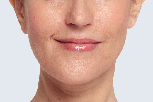 Lanie Restylane Lyft treatment in cheeks ‐ full view