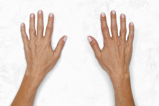 See Lanie's hands before and after Restylane Lyft