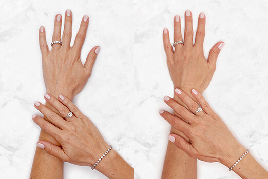 See Lanie's view before and after Restylane Lyft hand treatment