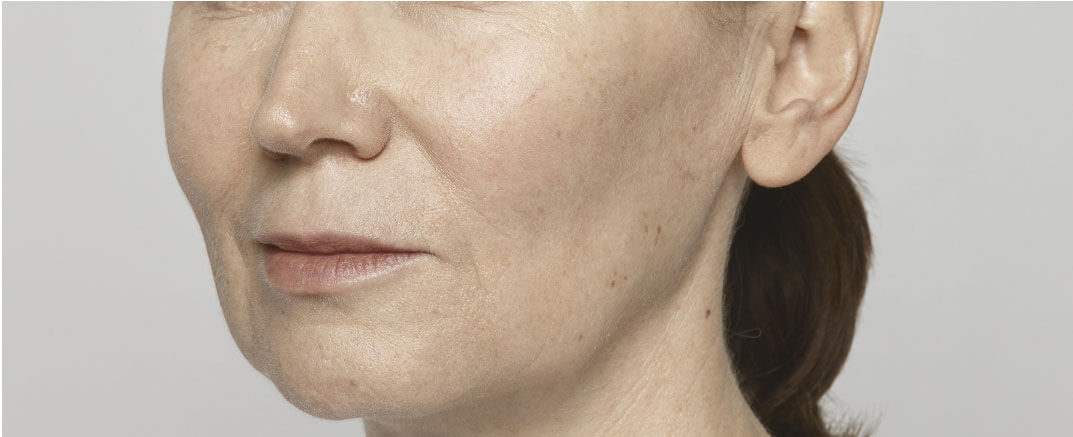 Before Restylane® Lyft treatment for cheeks