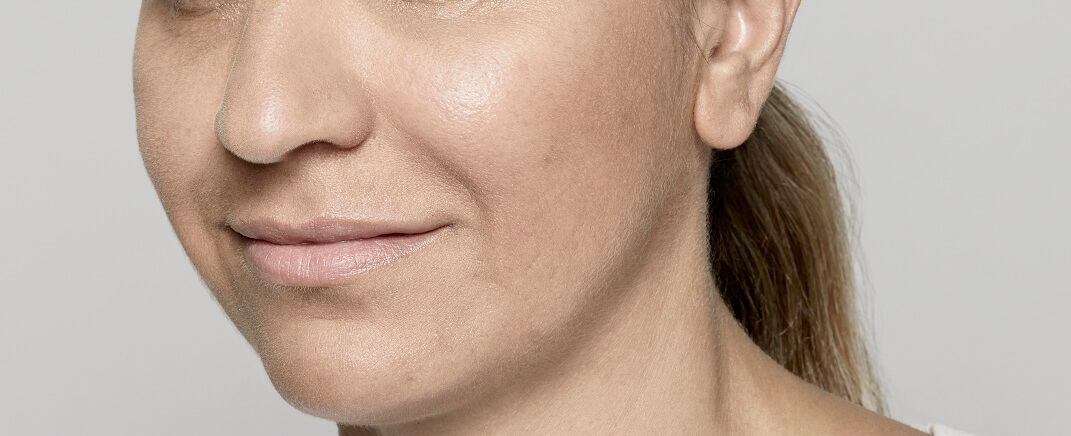 After cheek augmentation with Restylane® Lyft (hyaluronic acid)