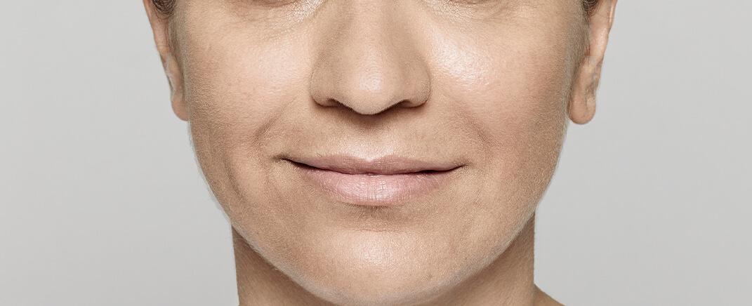After the use of Restylane® Lyft (hyaluronic acid)