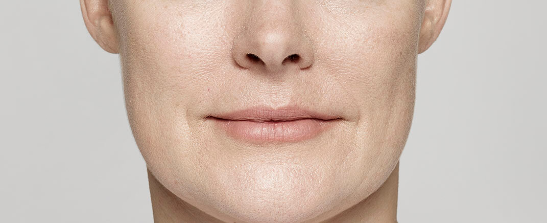 Robin smooths her smile lines (nasolabial folds)
