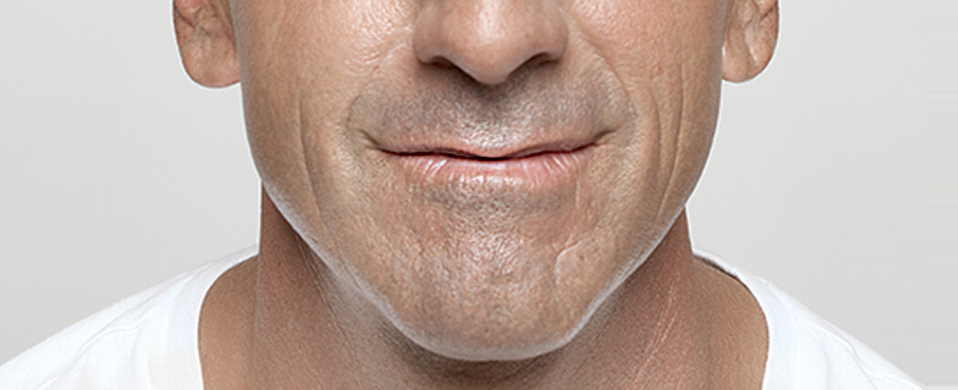 Jeff treats his facial wrinkles (nasolabial folds)