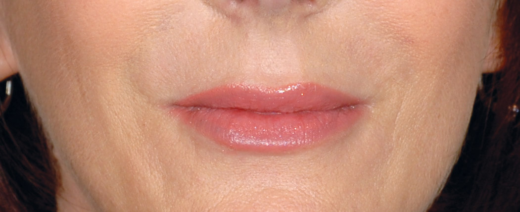 Restylane® (hyaluronic acid)  results