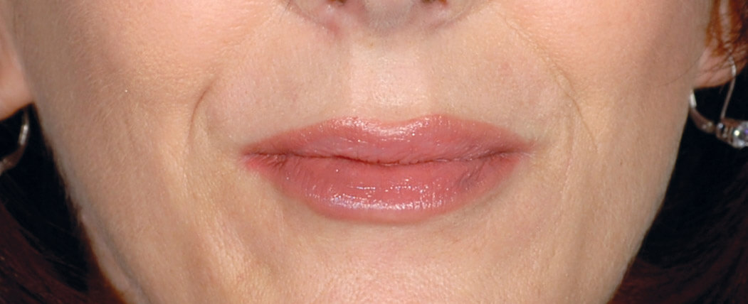 What is Restylane®? Fill Facial Wrinkles and Enhance Your Lips