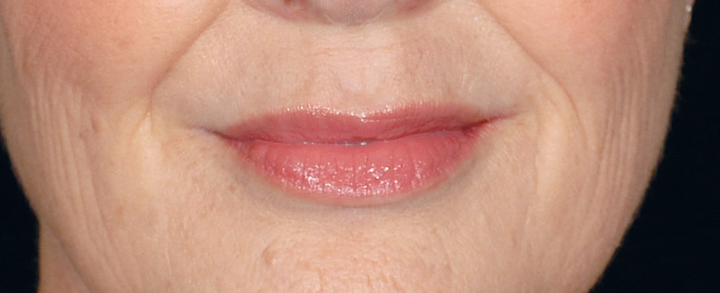 Nasolabial folds before Restylane®