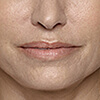 Smile lines (nasolabial folds)