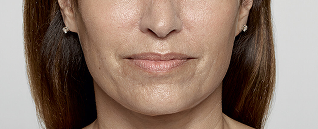 Before the use of Restylane® (hyaluronic acid)