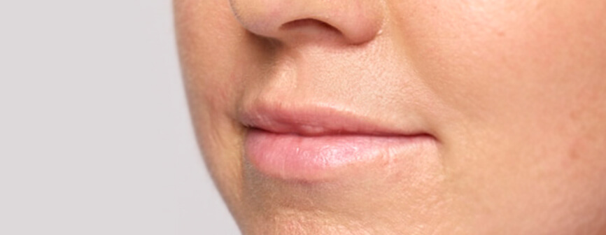 See Restylane® Silk lip injection results