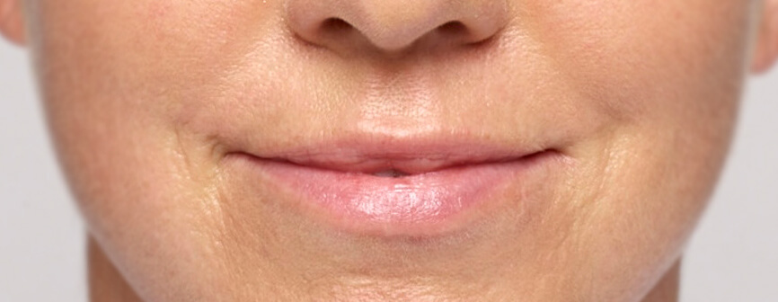 Lip enhancement with Restylane® Silk (hyaluronic acid)