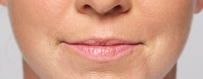 Restylane® Silk: Lip Filler with Natural-Looking Results