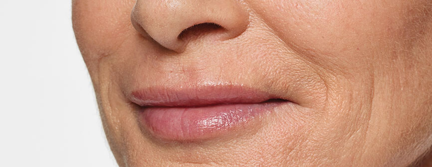 After Restylane® Silk lip enhancement