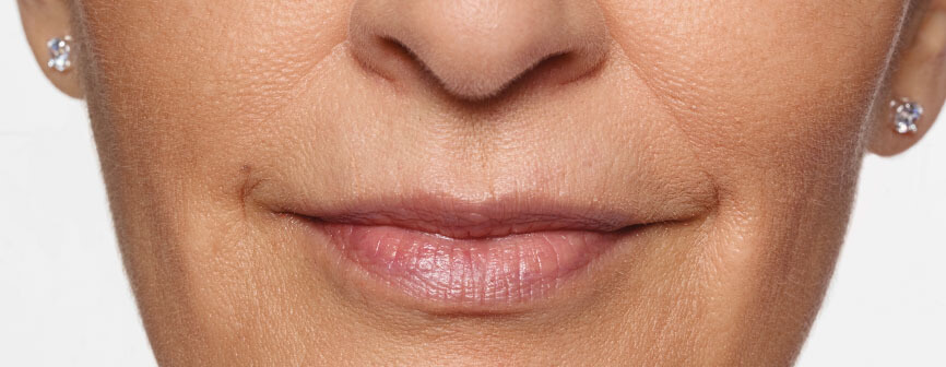 Carol's fuller lips after Restylane® Silk