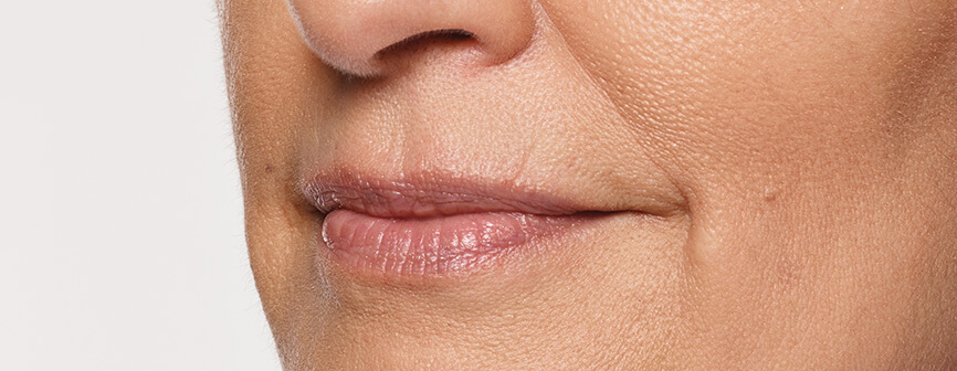 Carol's thin lips before Restylane® Silk